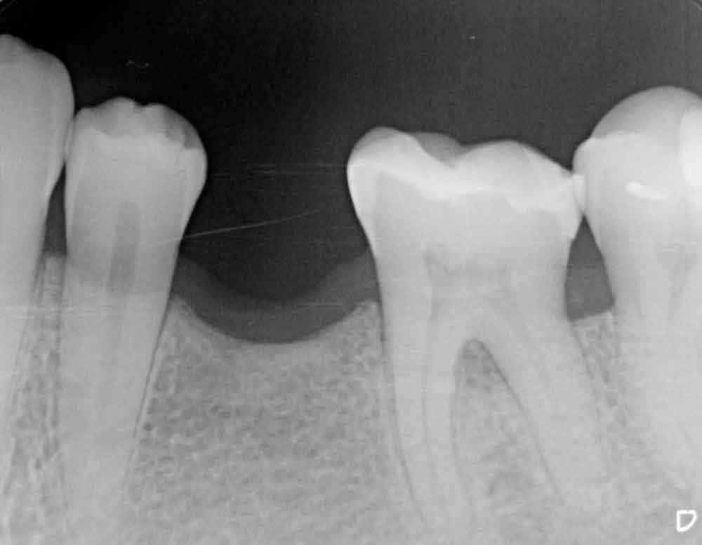 Prae_Implantat_Zahnarzt_Engelbrecht