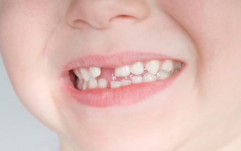 Traumatologie / Zahnunfälle